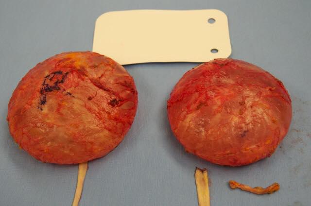 How long do cohesive gel implants last